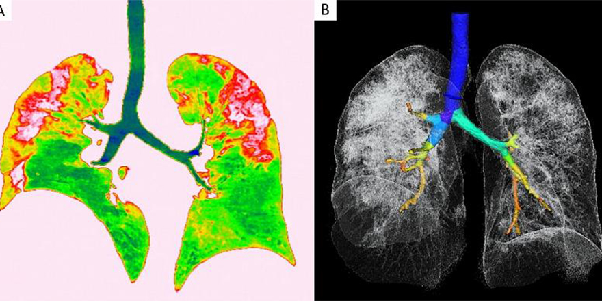 Koronavirüsün akciğerlere etkisi görüntülendi