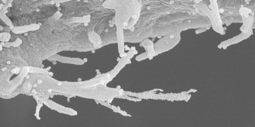 Koronavirüs'ün diğer hücrelere nasıl yayıldığı açıklandı