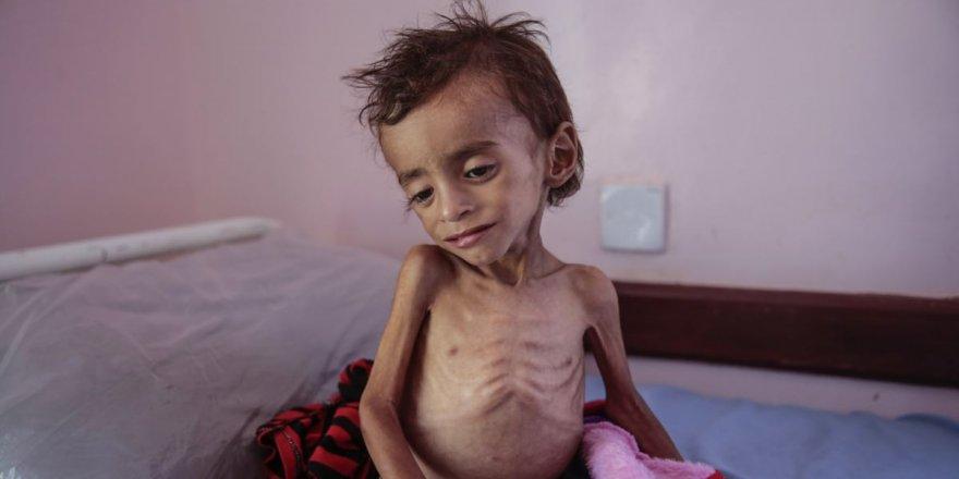 Yemen'de açlık nedeniyle 100 bin çocuk ölümün eşiğinde