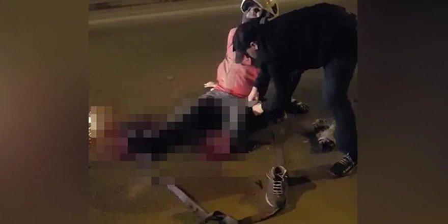Kocaeli'de korkunç kaza:Motosiklet sürücüsünün bacağı koptu
