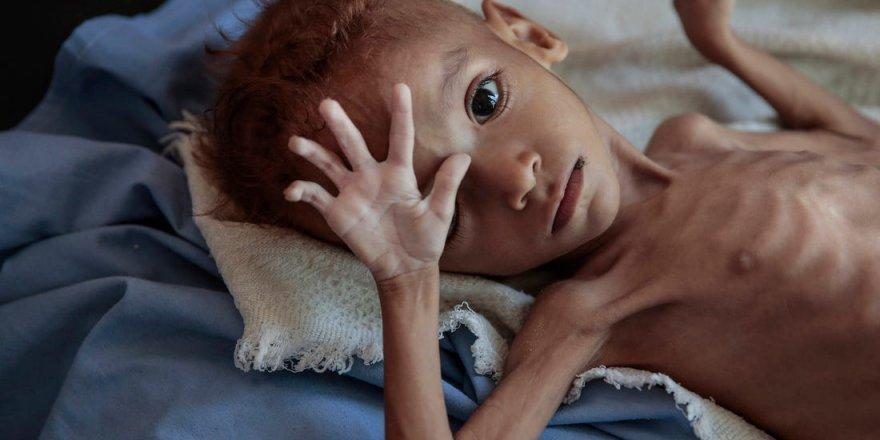 BM: Yemen'de bir nesil yok olmak üzere
