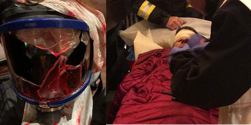 Paris'te polis, Türk gazeteciyi yaraladı