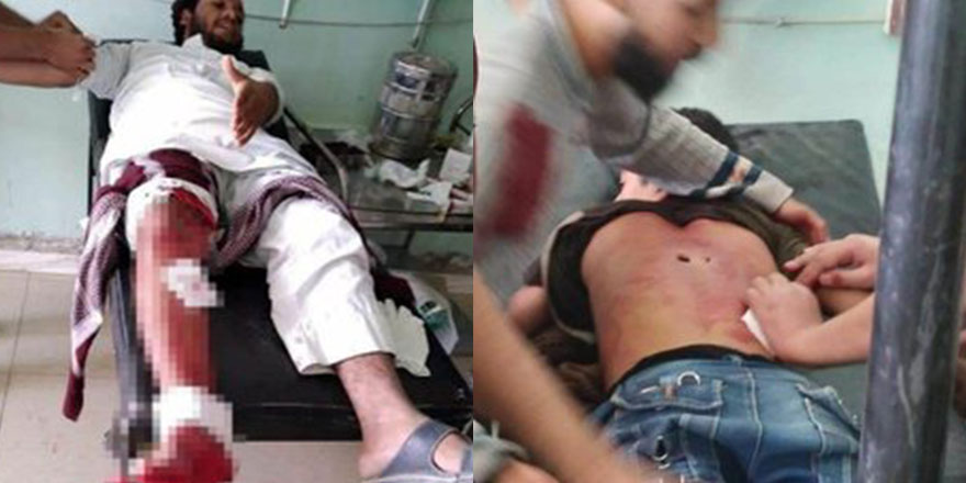 PKK/YPG, Fransa karşıtı gösteride sivillerin üzerine ateş açtı