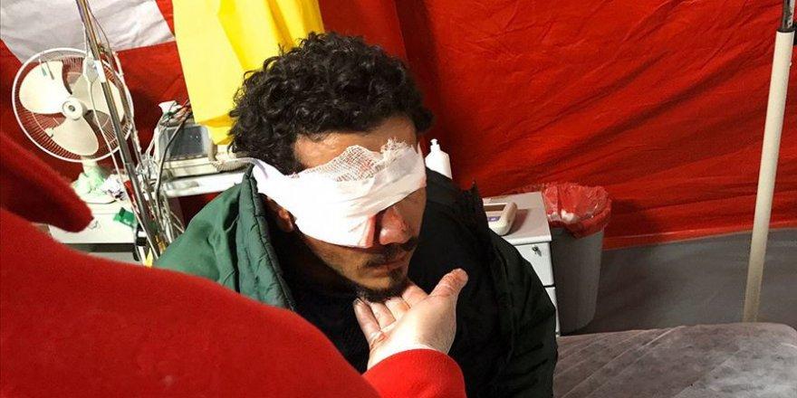 Yunan askerin attığı plastik mermi sığınmacıyı gözünden etti